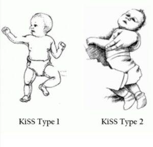 giancarlo_russo_kiss_syndrome_pattern_respiratorio
